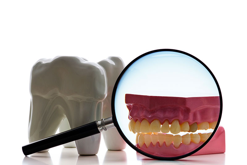 Root Canal - Olympic Family Dentistry, Los Angeles Dentist