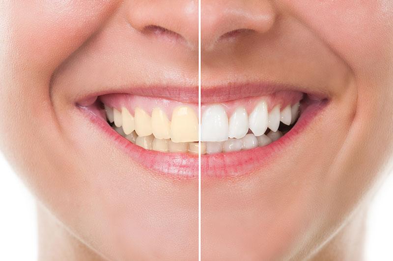 Teeth Whitening - Olympic Family Dentistry, Los Angeles Dentist